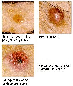 small dark spots on skin #9